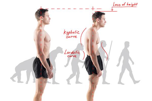 posture-image2
